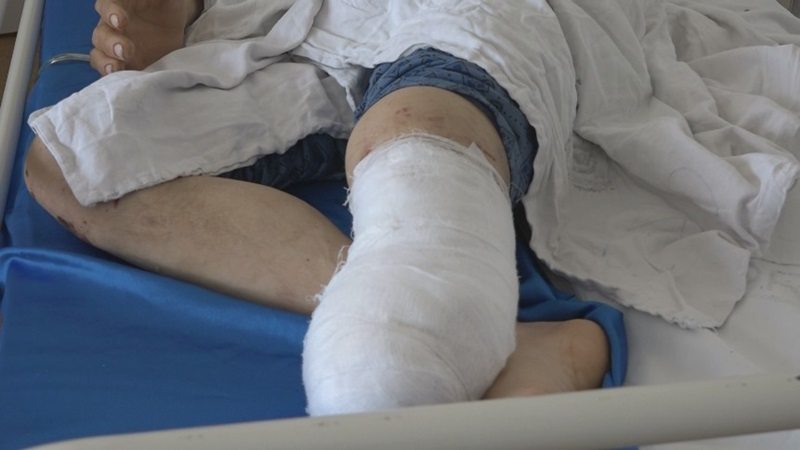 spital pacient cu piciorul taiat