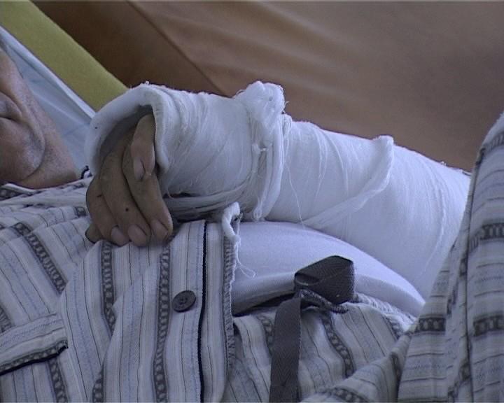 upu spital fracturi (7)